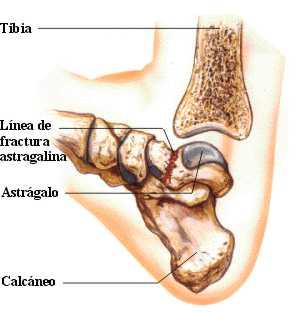 http://www.zonamedica.com.ar/categorias/medicinailustrada/fracturasdepie/images/f.astragalo1.jpg