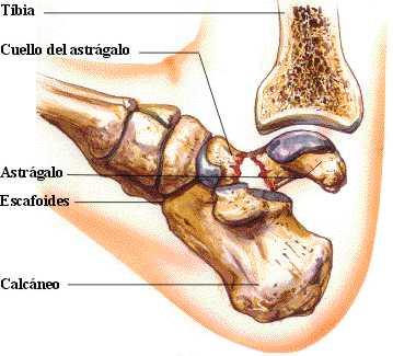 http://www.zonamedica.com.ar/categorias/medicinailustrada/fracturasdepie/images/f.astragalo2.jpg
