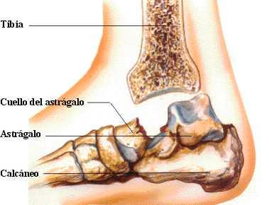 http://www.zonamedica.com.ar/categorias/medicinailustrada/fracturasdepie/images/fastragalo4.jpg