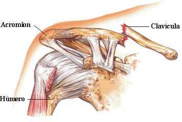 La hernia de los discos intervertebrales de la foto