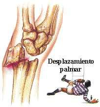 lesion de muneca: