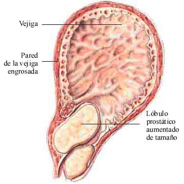 tratamiento para la prostatitis