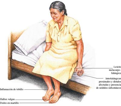 La mujer está enferma la psoriasis
